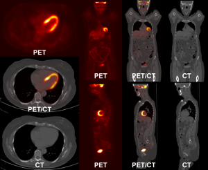 Fly4PET: Fly Algorithm in PET Reconstruction for Radiotherapy Treatment Planning